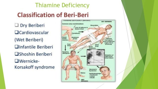 thiamine and genetic beriberi Beriberi is caused by a deficiency of thiamine (vitamin b1), which in turn causes neurological, mental, and cardiovascular problems.