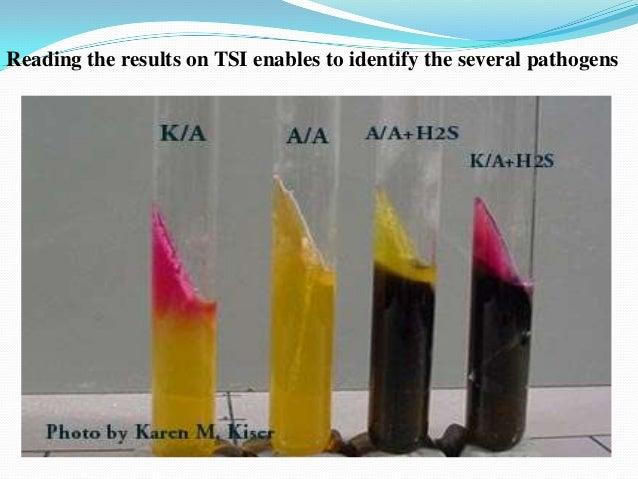 biochemical escherichia coli salmonella typhimurium Bacteria are usually identified by a range of biochemical tests  enterotoxigenic escherichia coli,  resistance from resistant strains of e coli to salmonella.