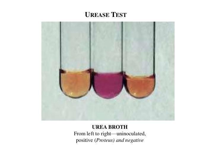 Biochemical test of bacteria
