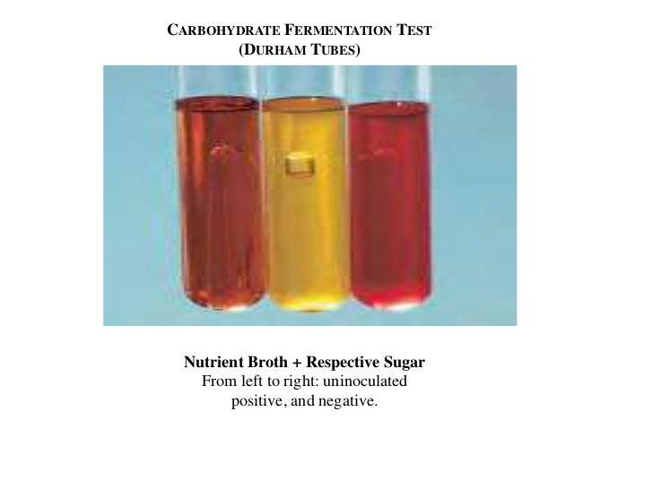 Growing Yeast: Sugar Fermentation