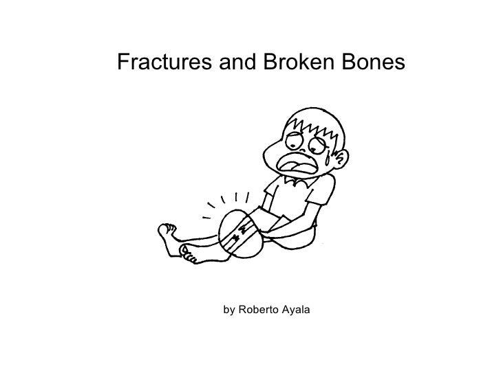 Fractures and Broken Bones by Roberto Ayala