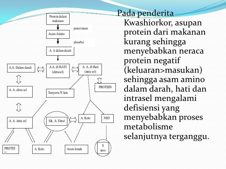 presentasi penyakit kwasiorkhor (Biokimia II)