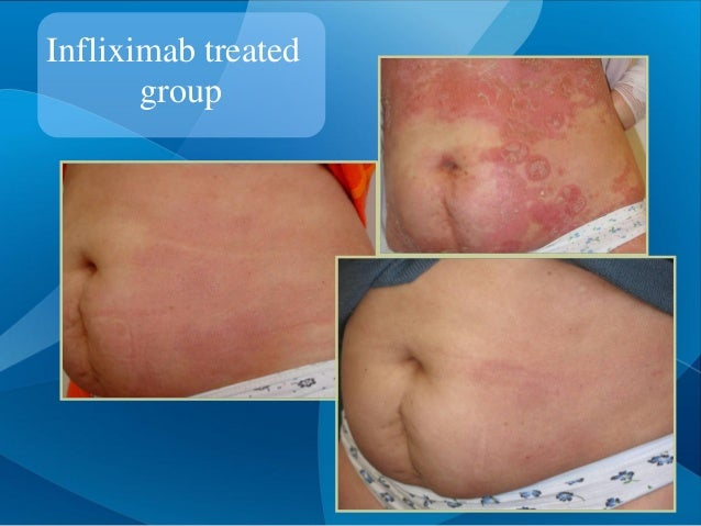Infliximab treated group