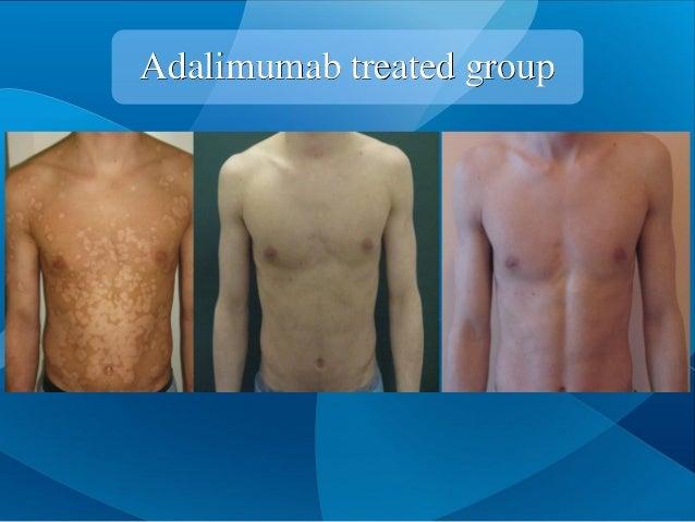 Adalimumab treated group