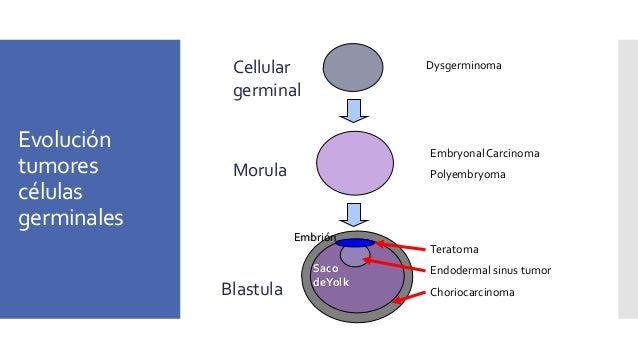 Evolución tumores células germinales Dysgerminoma Embryonal Carcinoma Polyembryoma Teratoma Endodermal sinus tumor Chorioc...