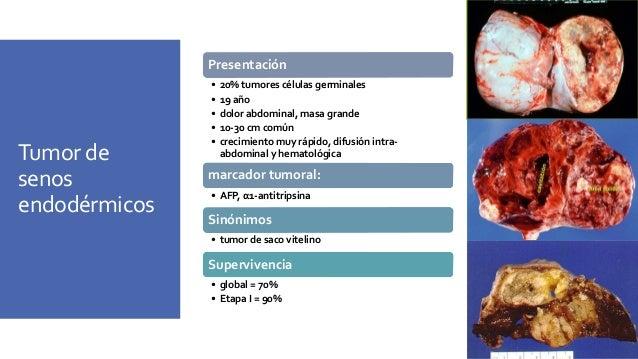 Tumor de senos endodérmicos Tumor sólido con hemorragia y necrosis gelatinosa en la superficie de corte Microscopía • Glób...
