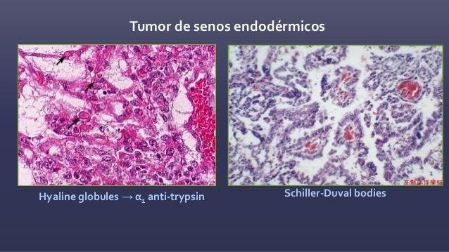 Teratomas Inmaduro Maduro Especializado • Estroma Ovarico • carcinoide