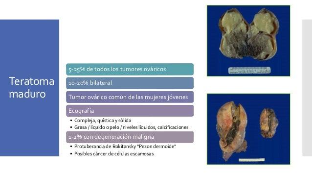 Intestinal gland formationSebaceous glands Teratoma maduro