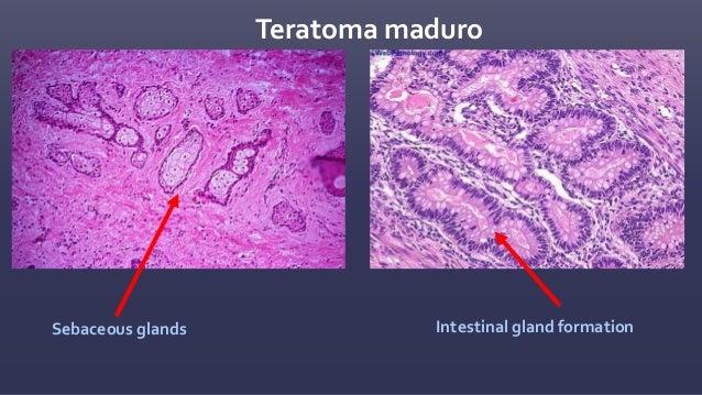 Coriocarcinoma Citotrofoblasto • células mas pequeñas • núcleos más pequeños Sincitiotrofoblasto • las células más grandes...