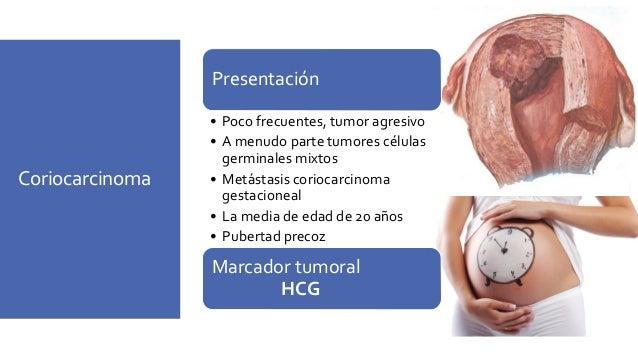 Gonadoblastoma Combinado de células germinales /tumor estromal de cordon sexual Presentación • edad 1-38 • Los tumores peq...