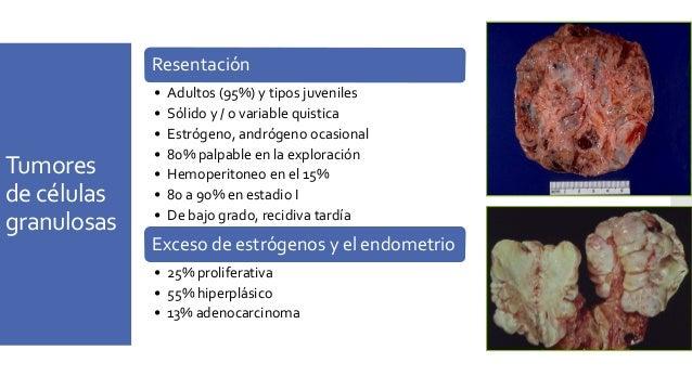 Tumores Sertoli-Leydig Benigno • Tumores de células de Sertoli → NO hormonas • tumores de Leydig → testosterona potencialm...