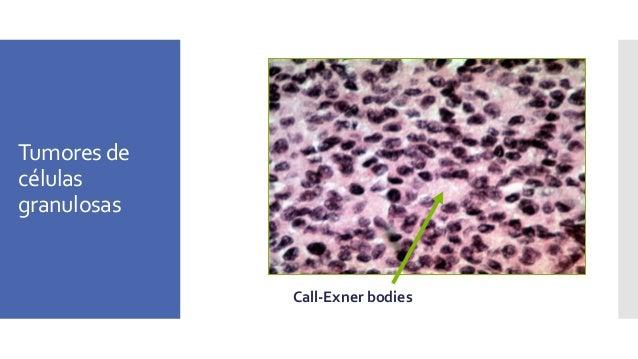 Tumores Sertoli-Leydig Well-differentiated tubules