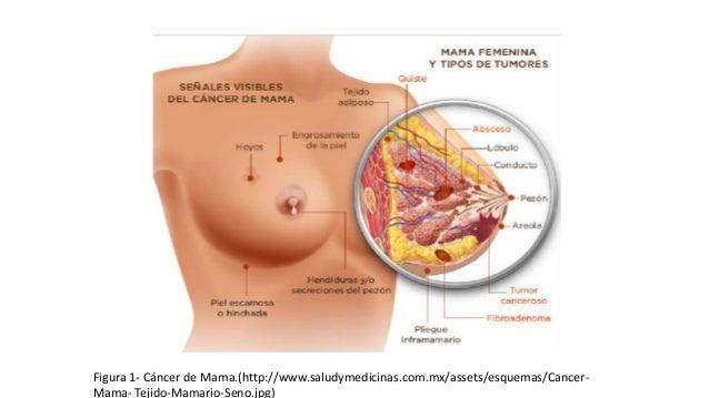 Figura 2 –Cáncer de Seno.(https://www.cancer.gov/images/cdr/live/CDR740903-571.jpg#)