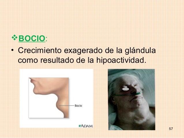 BOCIO:• Crecimiento exagerado de la glándula  como resultado de la hipoactividad.                                        ...