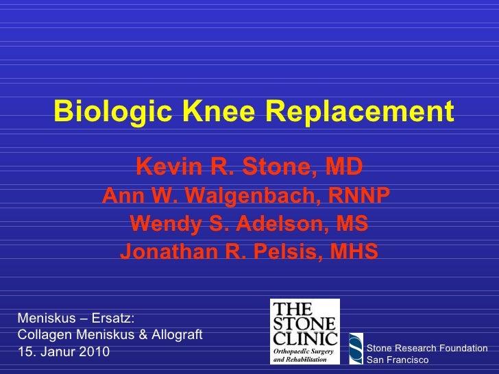 Biologic Knee Replacement Kevin R. Stone, MD Ann W. Walgenbach, RNNP  Wendy S. Adelson, MS Jonathan R. Pelsis, MHS Menisku...