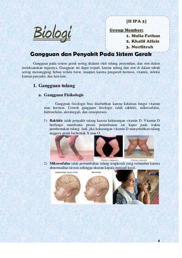 Biologi  [II IPA 3] Group Member; 1. Mulia Fathan 2. Khalif Alfaiz 3. Nurfitrah  Gangguan dan Penyakit Pada Sistem Gerak G...