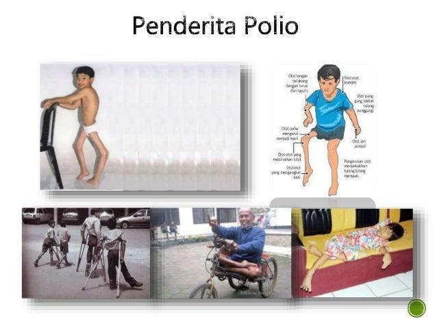 Hazardous ! Polio !!!