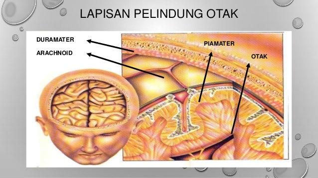 Cara Mengobati Penipisan lapisan Otak (Encephalomalacia)
