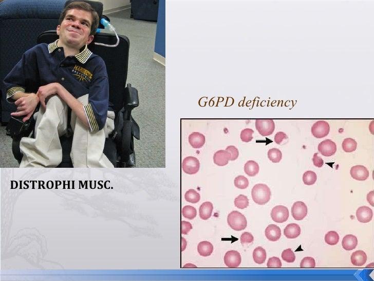 DISTROPHI MUSC. G6PD deficiency