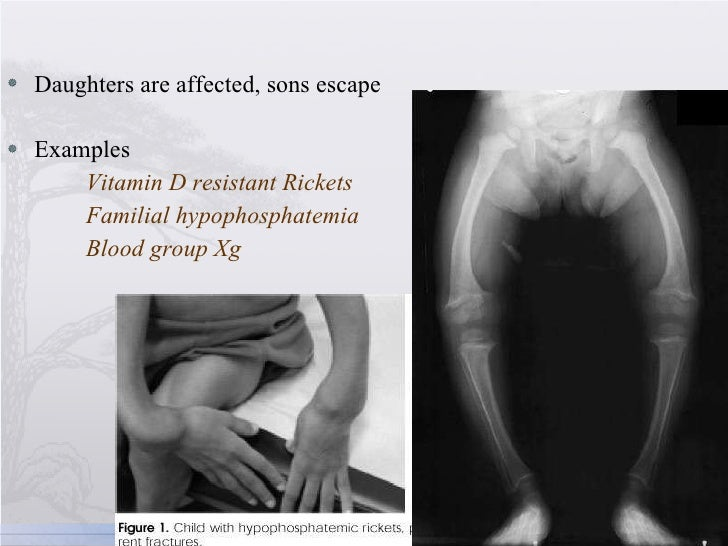 <ul><li>Daughters are affected, sons escape </li></ul><ul><li>Examples </li></ul><ul><li>Vitamin D resistant Rickets </li>...