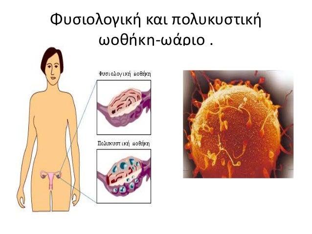 Η παραγωγή των ωοκυττάρων ξεκινά στην εμβρυϊκή ζωή. I. Σε κάθε εμβρυϊκή ωοθήκη αναπτύσσεται ένα φλοιώδη σχηματισμό που περ...