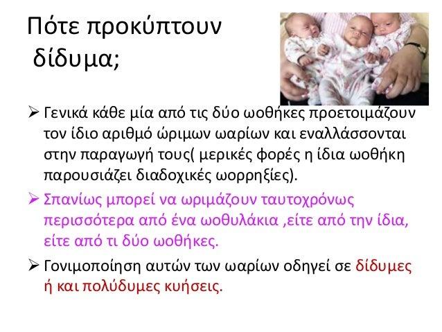 Χρωμοσωμικά σύνδρομα-DOWN Καρυότυπος θηλυκού ατόμου με σύνδρομο Down Παιδιά με Down