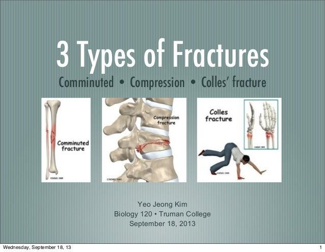 3 Types of Fractures Comminuted • Compression • Colles' fracture Yeo Jeong Kim Biology 120 • Truman College September 18, ...