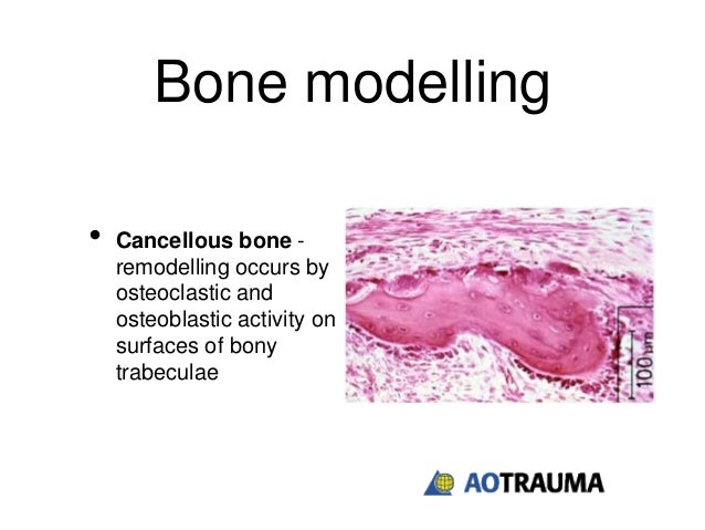 the biological sequence of healing bone fractures in basketball injuries Almost all injuries to the arm that result in a fracture to the bone are caused by either falling or a trauma to the arm the most common symptoms of a broken arm are: a large amount of pain and increased pain when moving the arm.