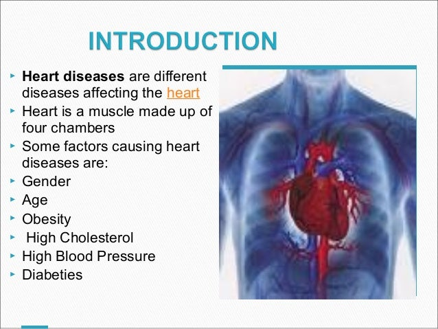 Cardiac diseases ccuart Image collections