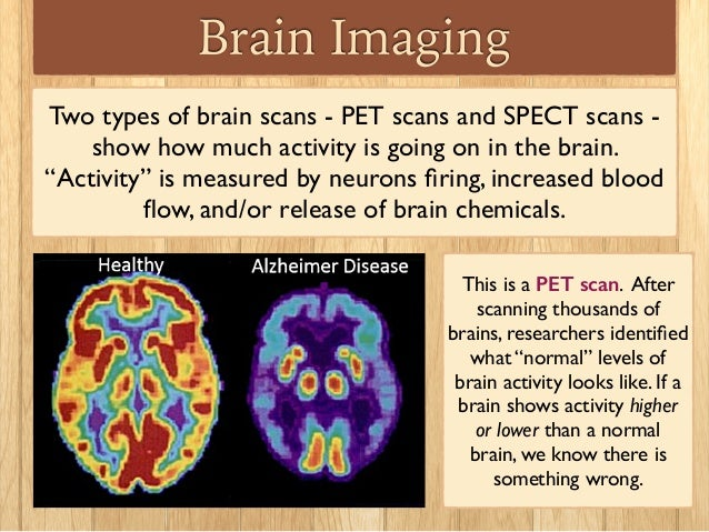 what are the different types of brain scans