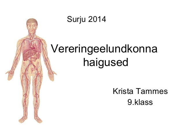 Vereringeelundkonna haigused Krista Tammes 9.klass Surju 2014