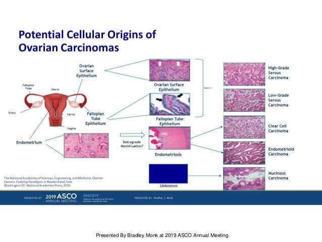 Biomarkers In Ovarian Cancer