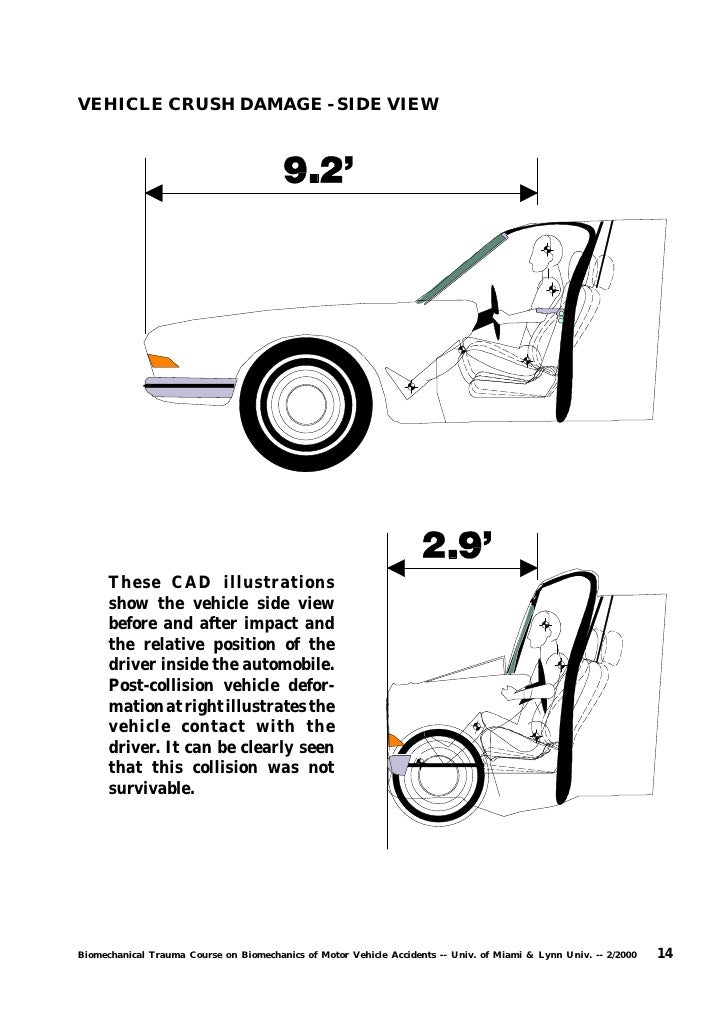 N - Motor Vehicle Accident Reconstruciton and Biomechanical Physics