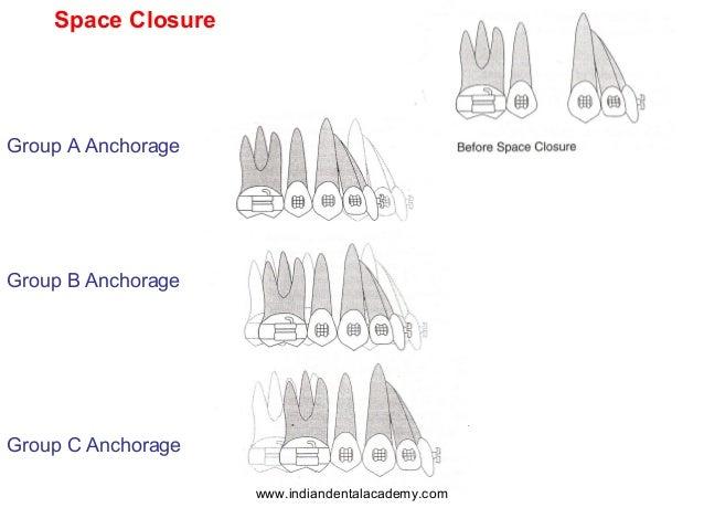 Biomechancal principles in orthodontics /certified fixed
