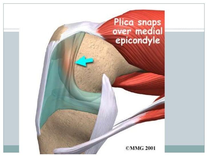 Biomechanics of knee complex 3
