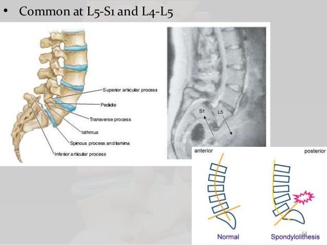 Biomechanics of lumbar spine