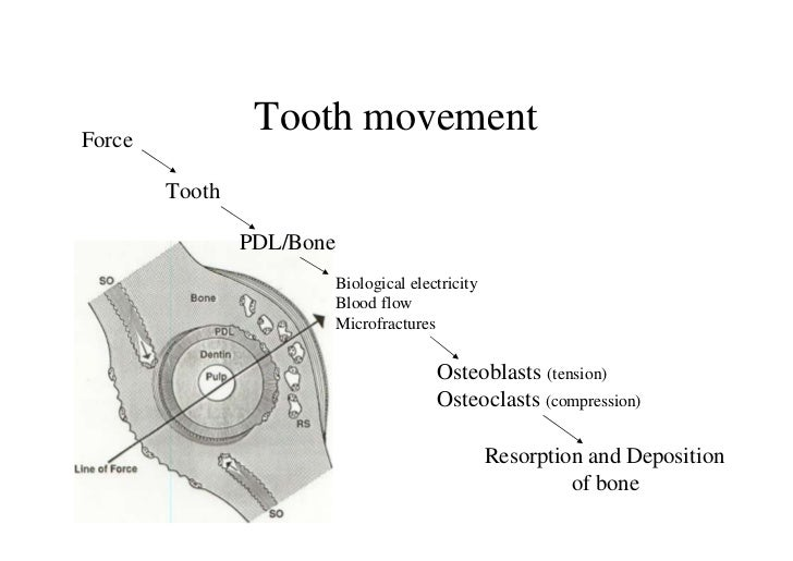 Force                 Tooth movement        Tooth                PDL/Bone                           Biological electricity...