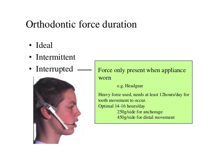 Orthodontic force duration• Ideal• Intermittent• Interrupted    Force only present when appliance                 worn    ...