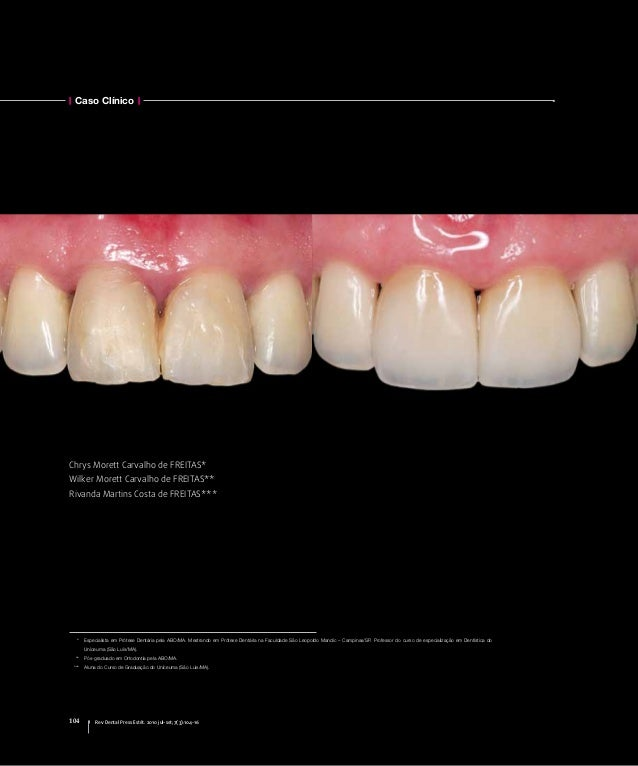 Caso Clínico 104 Rev Dental Press Estét. 2010 jul-set;7(3):104-16 Chrys Morett Carvalho de Freitas* Wilker Morett Carvalho...