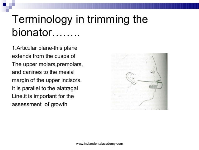 Terminology in trimming the bionator…….. 1.Articular plane-this plane extends from the cusps of The upper molars,premolars...