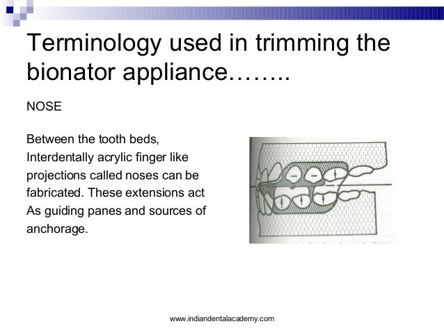 Terminology used in trimming the bionator appliance…….. NOSE Between the tooth beds, Interdentally acrylic finger like pro...