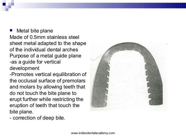 Metal bite plane Made of 0.5mm stainless steel sheet metal adapted to the shape of the individual dental arches Purpose of...