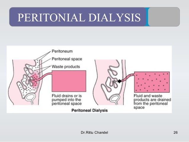 application of dialysis and osmosis