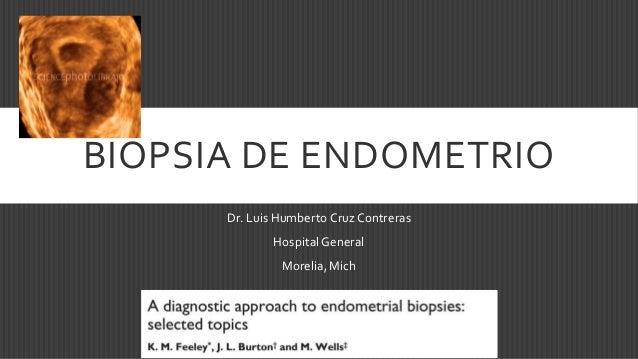 BIOPSIA DE ENDOMETRIO Dr. Luis Humberto Cruz Contreras Hospital General Morelia, Mich