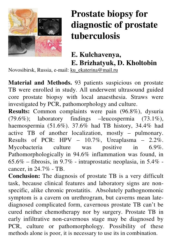Prostate biopsy for                            diagnostic of prostate                            tuberculosis             ...