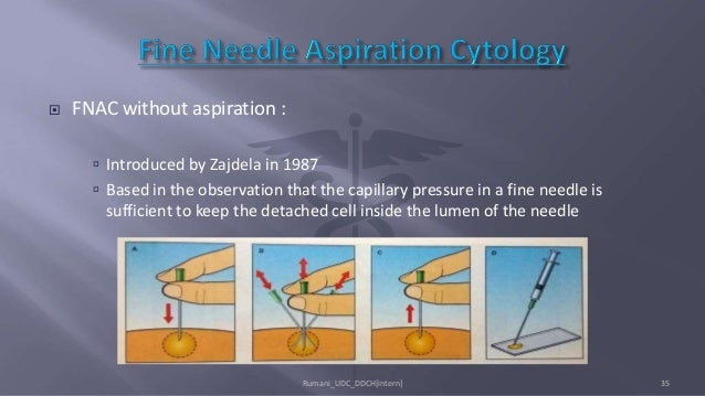  FNAC without aspiration :  Introduced by Zajdela in 1987  Based in the observation that the capillary pressure in a fi...