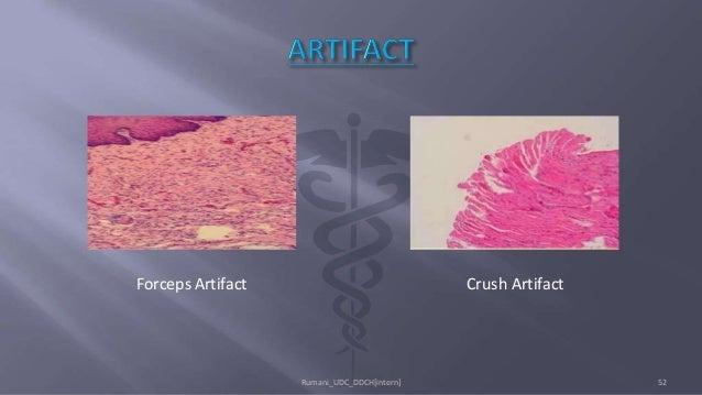 Forceps Artifact Crush Artifact Rumani_UDC_DDCH[intern] 52