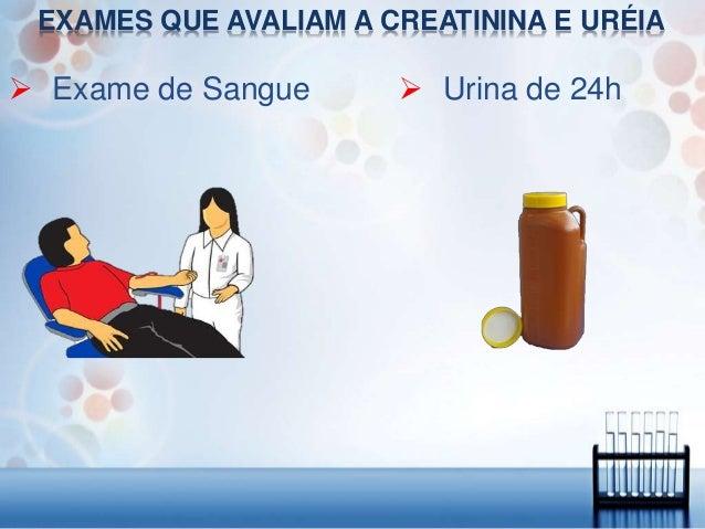 Exame ureia