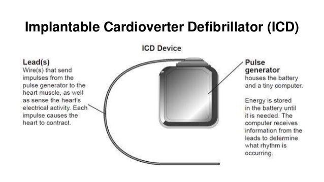 Prevention of Sudden Cardiac Death with Implantable