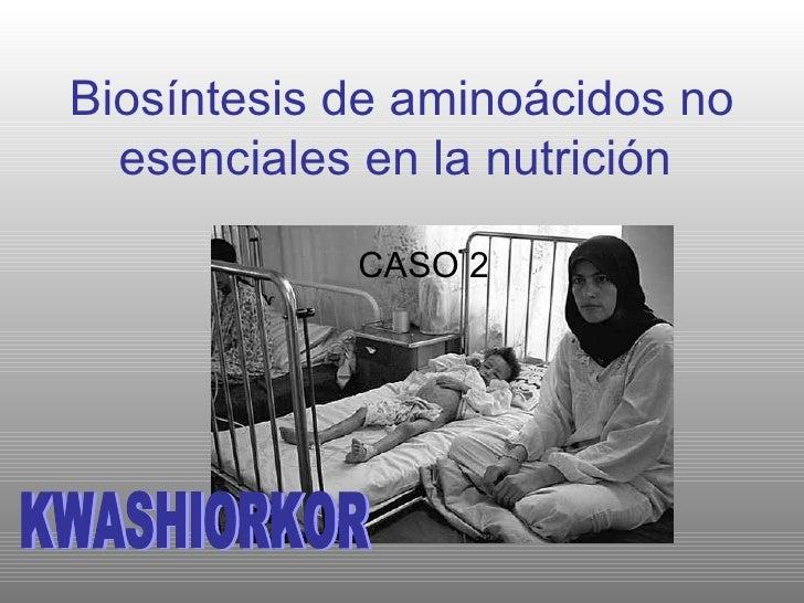 Biosíntesis de aminoácidos no esenciales en la nutrición   CASO 2 KWASHIORKOR